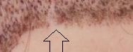 bald spot 6 days po
