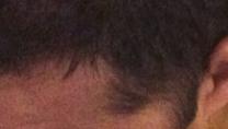 neck hair loss