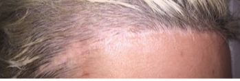 hairline loweirng scar