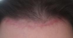 hairline lowering scar1