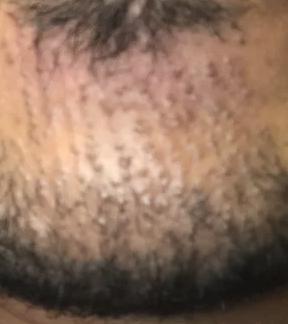bad beard Tx