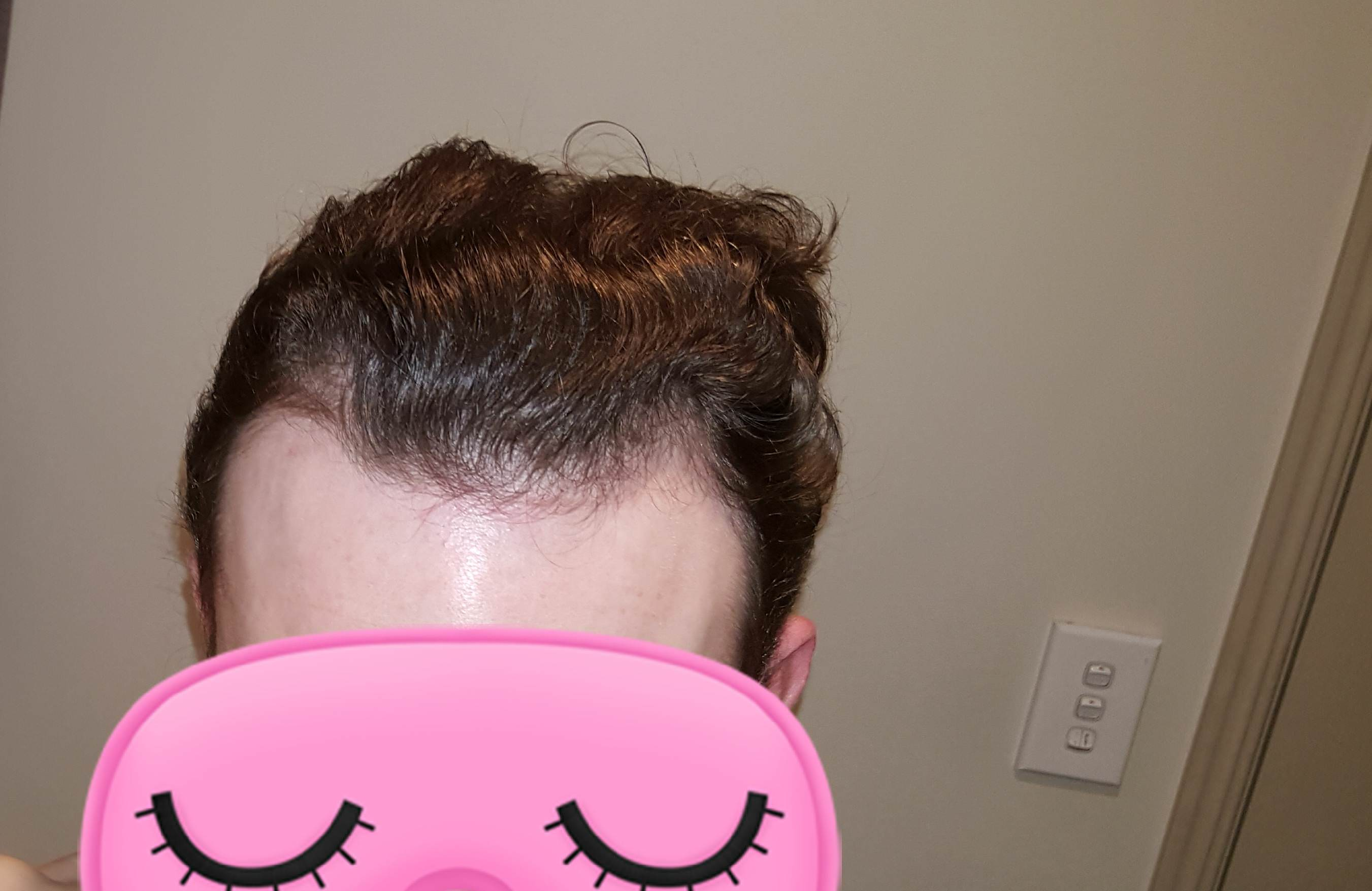 i am 19 is finasteride a good choice for this thinning from