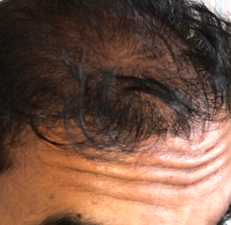 failure from 4500 FUE grafts