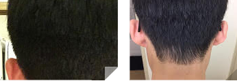 thinning nape of the neck
