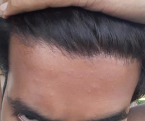 am i losing hair
