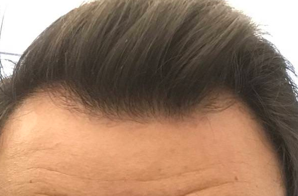 My Hairline Thickened Up On Finasteride And Minoxidil Over 18 Months Photo Wrassman M D Baldingblog