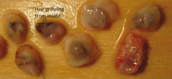ingrown or buried grafts