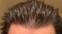 mature hair line