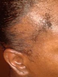 traction alopecia 2
