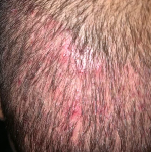 infected FUE site