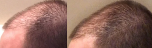 3 months on minoxidil