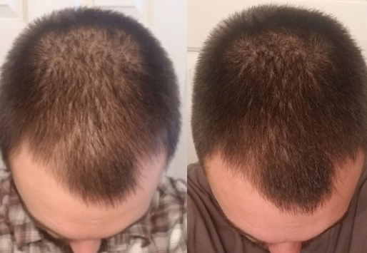 On finasteride 4 5 months (From Reddit) – WRassman,M D