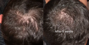 6 weeks on finasteride