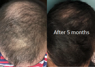 Application of minoxidil, finasteride and the use of