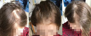 female hair loss Tx plus SMP