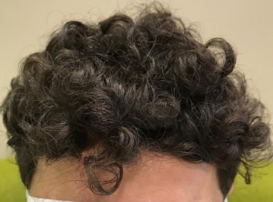 full head of hair2