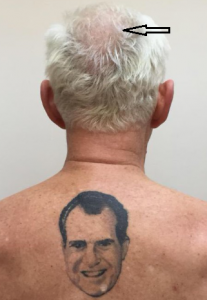 roger stone with tottoo