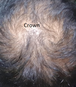 thinning in 24 year old
