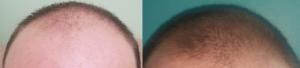 fin 6 months