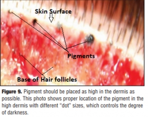 histology of SMP