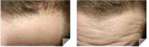 maturing hairline