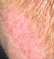 redness in recipient area