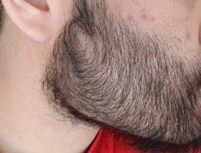 wants a heavier beard
