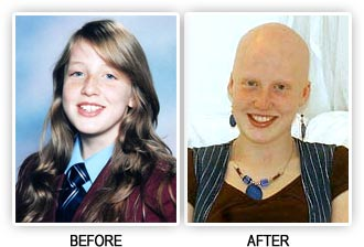 Bullied girl - before and after