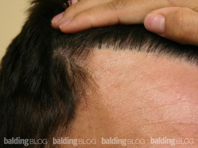 How To Fix A Pluggy Hairline With Photos Wrassman M D Baldingblog