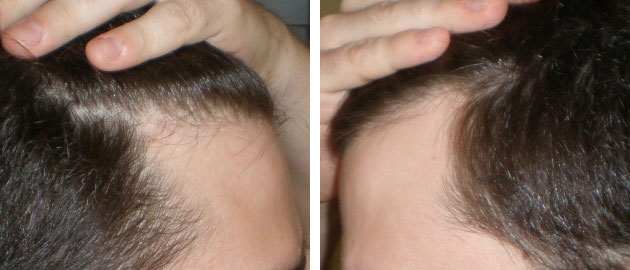 Receding Hairline Corners — Is It Just a Mature Hairline? (With Photos) |  WRassman,M.D. BaldingBlog