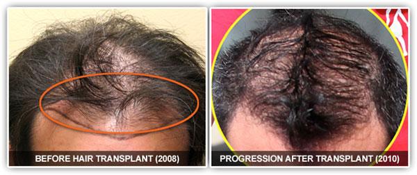 Gosselin hair