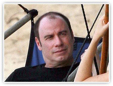 John Travolta balding