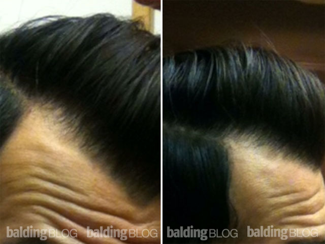 Reinforcing the mature hairline