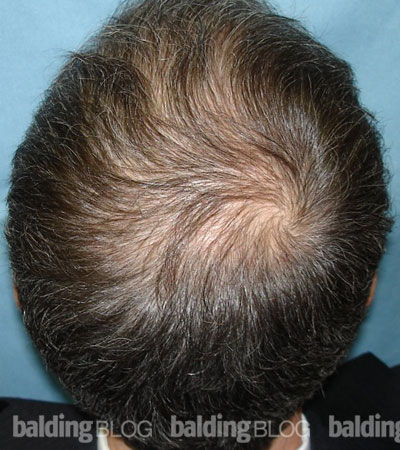 Patient Result 1 Year After Rogaine Foam And 0 25mg Finasteride With Photos Wrassman M D Baldingblog