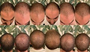 Three months on finasteride, minoxidil and microneedling